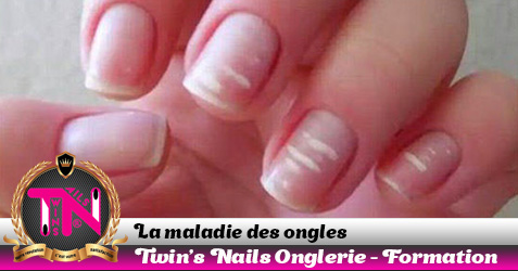 maladie-des-ongles